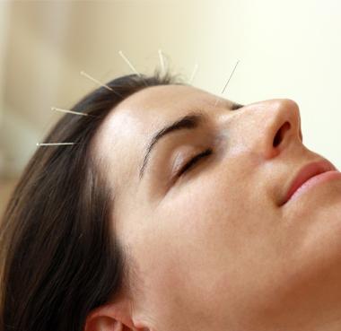 agopuntura craneale